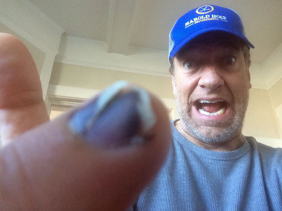Safety Third - Mike Rowe - Injured Finger
